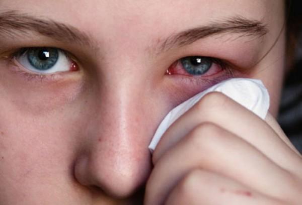 Воспаление одного глаза у подростка