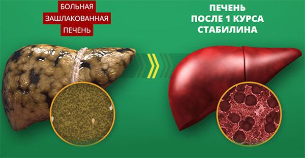 Поврежденная и здоровая печень человека