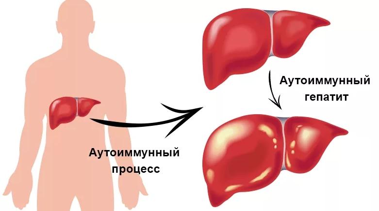 Аутоиммунный гепатит — симптомы, причины и лечение