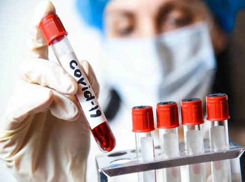 Последние новости о тестировании на коронавирус: новые методы, точность