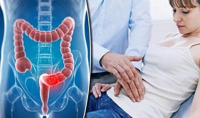 Рак кишечника у молодежи