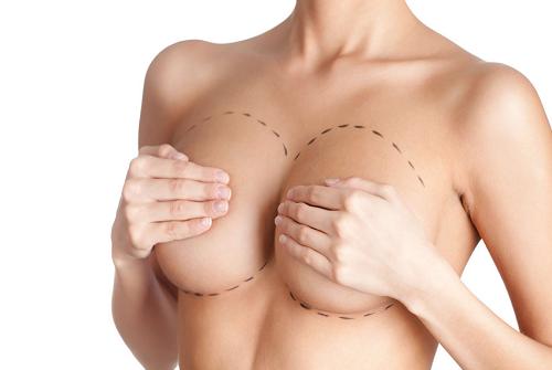 Увеличение груди с помощью имплантов. Плюсы и минусы процедуры
