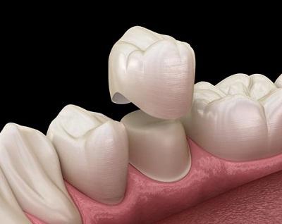 Плюсы и минусы зубных коронок