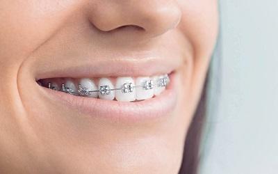 Ваши зубы сместились после брекетов. Что теперь?