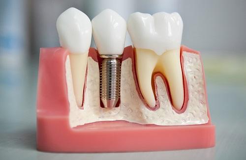 Имплантация зубов. 5 преимуществ зубных имплантов